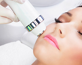 CO2 Laser Resurfacing