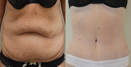 Tummy Tuck Inland Empire | Abdominoplasty (Tummy Tuck) Surgeon